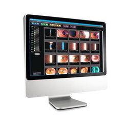 Медицинское оборудование Huvitz Цифровая система регистрации изображений и видео HIS-5000