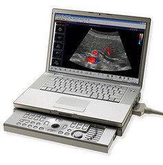 Медицинское оборудование Hitachi Aloka Ультразвуковой сканер ProSound C3