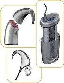 Медицинское оборудование Cochlear Ltd Речевой процессор Nucleus Freedom - фото 2