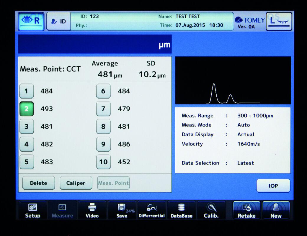 Медицинское оборудование Tomey Ультразвуковой сканер UD-800 - фото 3