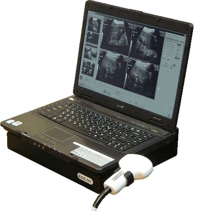Медицинское оборудование Ратекс Ультразвуковой сканер Раскан ЭТС-Д-05ЕП - фото 1