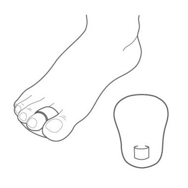 Talus Корректор второго и/или третьего молоткообразных пальцев 43K-II - фото 2