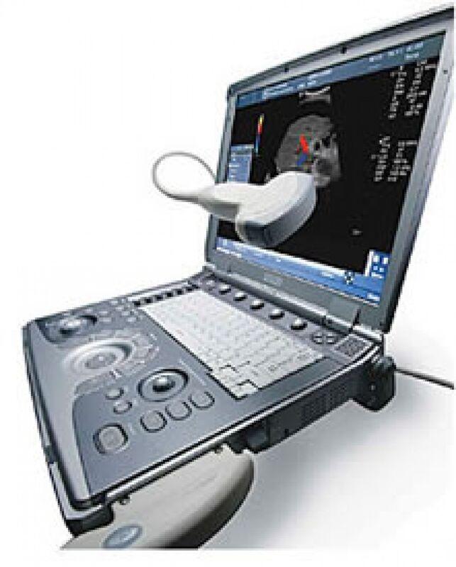 Медицинское оборудование General Electric Ультразвуковой сканер Logiq I - фото 1
