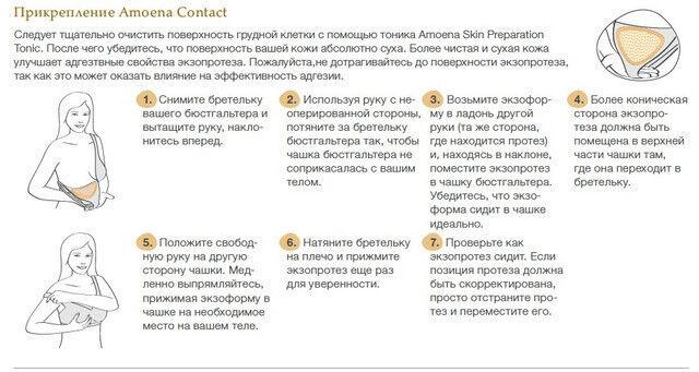 Amoena Немецкий Экзопротез Contact 2S - фото 6