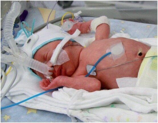 Медицинское оборудование Stephan EasyFlow nCPAP Неинвазивная система для вентиляции недоношенных и новорожденных детей - фото 1