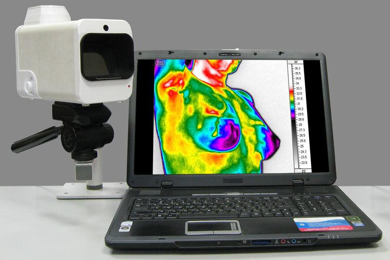 Медицинское оборудование Irtis Термограф ИРТИС-2000 ME - фото 1