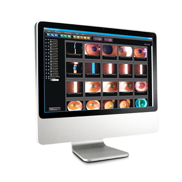 Медицинское оборудование Huvitz Цифровая система регистрации изображений и видео HIS-5000 - фото 1