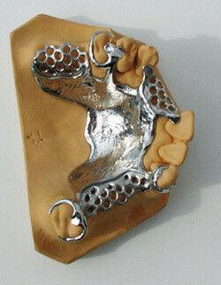 Стоматологическое оборудование Neirynck & Vogt N.V Масса скоростная паковочная для литья бюгельных протезов MG-Vest (упаковка: 45*400г+1л) - фото 3