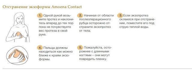 Amoena Немецкий Экзопротез Contact 2S - фото 5