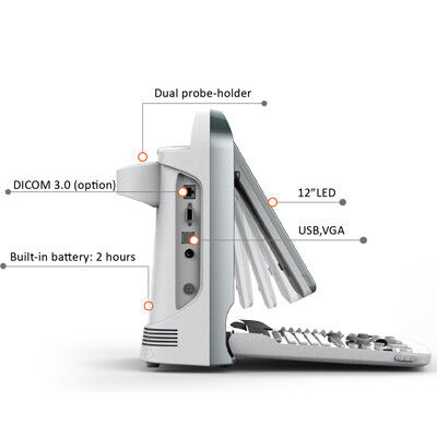 Медицинское оборудование Chison Портативная ультразвуковая система ECO5 - фото 2
