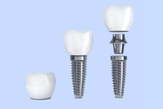 Что важно знать об имплантации зубов? Всеобэтапах подготовки, установки и восстановления